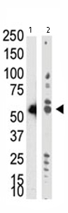 Western blot - Dnmt2 antibody (ab71015)