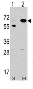 Western blot - STK39 antibody (ab71025)