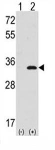 Western blot - Cdc2  antibody (ab71028)