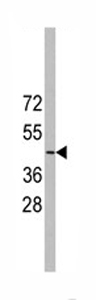 Western blot - MSY2/YBOX2 antibody (ab71035)