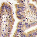 Immunohistochemistry (Formalin/PFA-fixed paraffin-embedded sections) - Transglutaminase 2 antibody (ab71099)