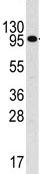 Western blot - IL3RB antibody (ab71105)