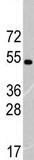 Western blot - RNF36  antibody (ab71114)
