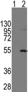 Western blot - HERV antibody (ab71115)