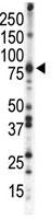 Western blot - PKC beta 1 + PKC beta 2 antibody - C-terminal (ab71123)