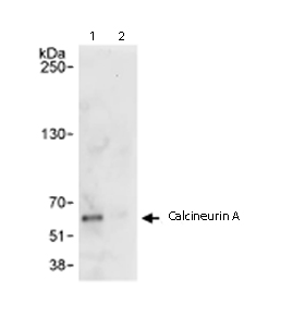 Immunoprecipitation - Calcineurin A antibody (ab71149)