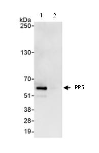 Immunoprecipitation - PP5 antibody (ab71150)
