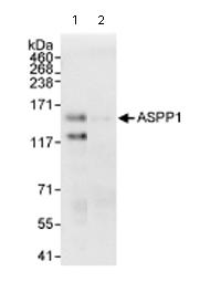 Immunoprecipitation - ASPP1 antibody (ab71163)