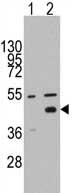 Western blot - WIF1 antibody - N-terminal (ab71204)