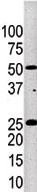 Western blot - Kallikrein 4 antibody (ab71234)