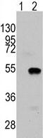 Western blot - KMT3C / SMYD2 antibody - N-terminal (ab71235)