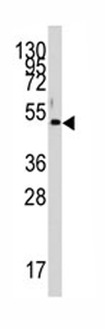Western blot - PDK4 antibody (ab71240)