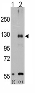 Western blot - TRPM8 antibody (ab71245)