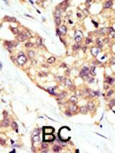 Immunohistochemistry (Formalin/PFA-fixed paraffin-embedded sections) - DOK5 antibody - Aminoterminal end (ab71308)