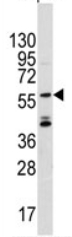 Western blot - ANGEL2 antibody (ab71319)