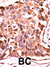 Immunohistochemistry (Formalin/PFA-fixed paraffin-embedded sections) - PPP4C antibody (ab71324)