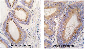 Immunohistochemistry (Formalin/PFA-fixed paraffin-embedded sections) - BMP11 antibody - Aminoterminal end (ab71347)