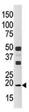 Western blot - NME3 antibody (ab71502)