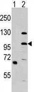 Western blot - MLK4 antibody - N-terminal (ab71510)