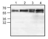 Western blot - Brk antibody (ab71515)