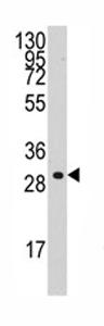 Western blot - Cyclin C antibody - C-terminal (ab71527)