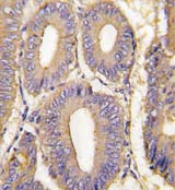 Immunohistochemistry (Formalin/PFA-fixed paraffin-embedded sections) - PAK1 antibody (ab71549)