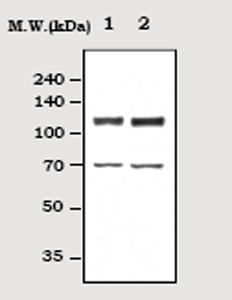 Western blot - FAK antibody (ab71563)