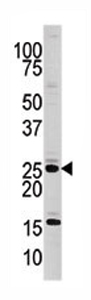 Western blot - Casein Kinase 2 beta antibody - Aminoterminal end (ab71599)