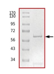 SDS-PAGE - PKR protein (Active) (ab71666)
