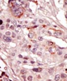 Immunohistochemistry (Formalin/PFA-fixed paraffin-embedded sections) - SRMS antibody - N-terminal (ab71675)