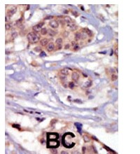 Immunohistochemistry (Formalin/PFA-fixed paraffin-embedded sections) - Fyn antibody (ab71676)