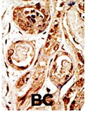 Immunohistochemistry (Formalin/PFA-fixed paraffin-embedded sections) - SENP3 antibody - Aminoterminal end (ab71677)