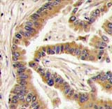 Immunohistochemistry (Formalin/PFA-fixed paraffin-embedded sections) - Anti-Casein Kinase 1 alpha antibody (ab71692)