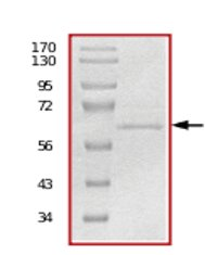 SDS-PAGE - MUSK protein (Active) (ab71693)