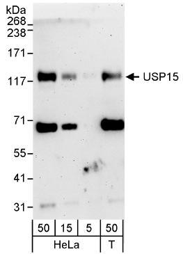Western blot - USP15 antibody (ab71713)