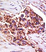 Immunohistochemistry (Formalin/PFA-fixed paraffin-embedded sections) - USP13 antibody (ab71734)