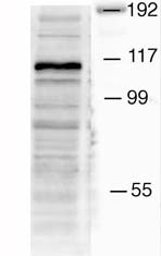 Western blot - Mib1/Mindbomb antibody - N-terminal (ab71749)