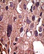 Immunohistochemistry (Formalin/PFA-fixed paraffin-embedded sections) - FNTB antibody - N-terminal (ab71755)