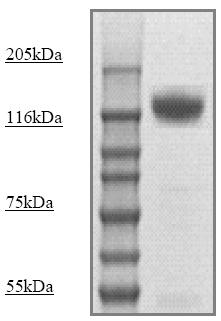 Western blot - Neuropilin 1 (phospho T916) antibody (ab71766)