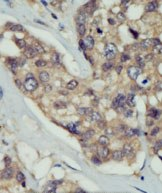 Immunohistochemistry (Formalin/PFA-fixed paraffin-embedded sections) - DOK5 antibody (ab71767)