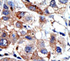 Immunohistochemistry (Formalin/PFA-fixed paraffin-embedded sections) - MBD3 antibody - Carboxyterminal end (ab71777)