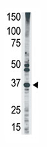 Western blot - MAGEA2 antibody - Aminoterminal end (ab71786)