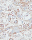 Immunohistochemistry (Formalin/PFA-fixed paraffin-embedded sections) - DMAP1 antibody - Carboxyterminal end (ab71789)
