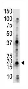 Western blot - Ube2G2 antibody - Aminoterminal end (ab71797)