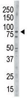Western blot - NEK11 antibody - C-terminal (ab71813)