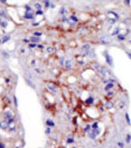 Immunohistochemistry (Formalin/PFA-fixed paraffin-embedded sections) - PIP5KI gamma  antibody - N-terminal (ab71820)