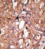 Immunohistochemistry (Formalin/PFA-fixed paraffin-embedded sections) - CD73 antibody - C-terminal (ab71822)