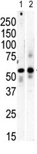 Western blot - PI 4 Kinase type 2 beta  antibody - C-terminal (ab71823)