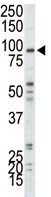 Western blot - Myosin light chain kinase antibody - N-terminal (ab71826)