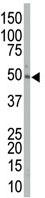 Western blot - MEK2 antibody (ab71828)